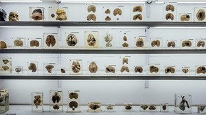 Foto: Museum Otak di India, Kalau Takut Jangan Lihat!