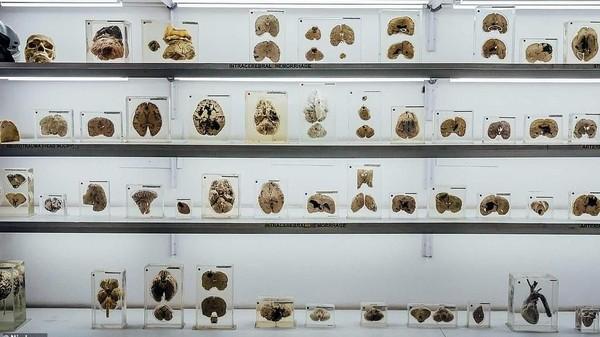 Ada lebih dari 600 spesimen otak yang ada di museum ini. Masing-masing spesimen diberi label tentang penyakit atau kelainan apa yang diderita otak tersebut, dari alzheimer, parkinson, sampai skizofernia. (NIMHANS)