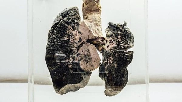 Selain otak manusia, ada juga organ-organ tubuh lainnya. Ini contohnya adalah paru-paru seorang perokok berat, dan masih banyak lagi yang lainnya. (NIMHANS)