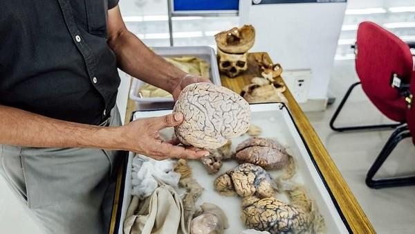 Otak-otak ini berasal dari pasien penderita penyakit/kelainan otak, yang didonasikan setelah sang pasien meninggal. Traveler bisa pegang langsung spesimen otak di museum ini. Berani nggak? (NIMHANS)