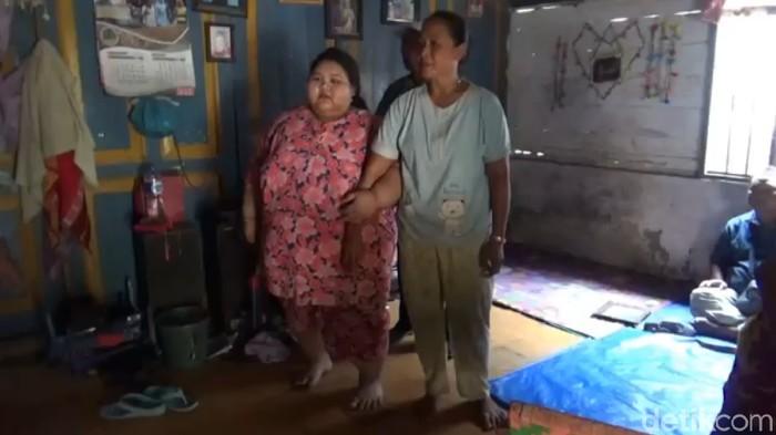 Selvia, remaja asal Lamongan yang berbobot 197 kg. (Foto: Eko Sudjarwo)