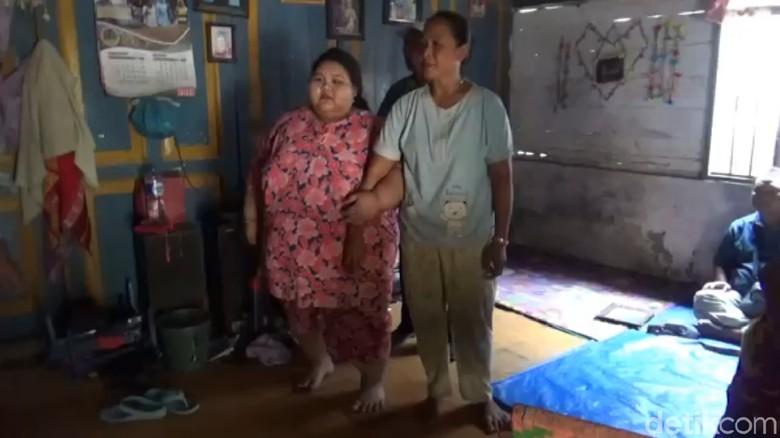 Ini Silvia, Gadis Lamongan yang Putus Sekolah karena Berbobot 197 Kg
