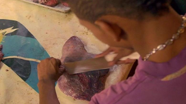 Krisis Venezuela, Warga Makan Daging Busuk Untuk Bertahan Hidup