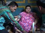 Dinkes Bentuk Tim Khusus Pantau Selvia, Remaja Berbobot 179 Kg