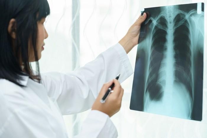 Paru-paru menjadi organ yang vital bagi keberlangsungan hidup manusia. Bila kamu menemui beberapa tanda berikut ada yang kamu miliki, jangan segan untuk memeriksakan ke dokter. Pertama adalah batuk kronis yang kamu miliki selama beberapa bulan atau lebih. Foto: iStock