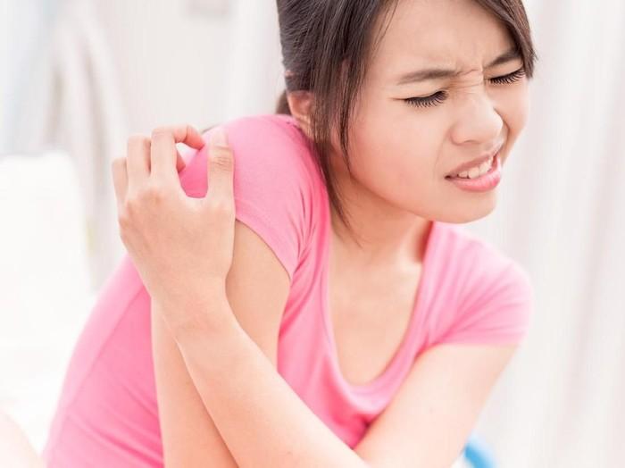 11 Jenis Penyakit Kulit yang Rentan Menyerang Tubuh/Foto: iStock