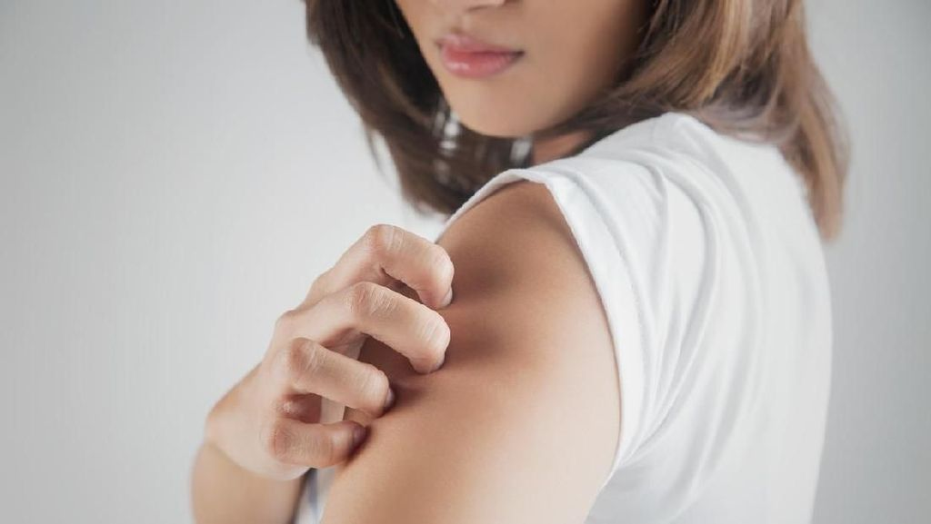 Waspada! Vitiligo Bisa Berkaitan dengan Depresi