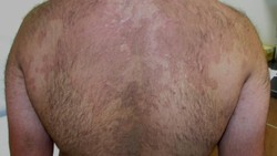 Munculnya bercak putih di kulit bisa disebabkan banyak hal. Lalu bagaimana kita bisa tahu terinfeksi panu? Ada beberapa ciri khas yang bisa diperhatikan.
