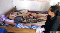 Derita Sunarto, 1,5 Tahun Dihinggapi Tumor Tulang