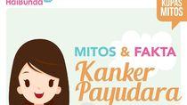10 Mitos dan Fakta Kanker Payudara yang Bunda Perlu Tahu