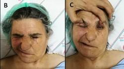 Tanda awal dari serangan stroke biasanya adalah kelemahan otot di bagian tubuh tertentu terutama wajah. Contohnya seperti yang dialami orang-orang ini.