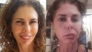 Wajah Perempuan Ini Lumpuh Sebelah Akibat Kutu di Telinga