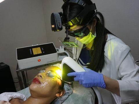 Review Miracle Clinic Mencoba Perawatan Laser Untuk Atasi Flek Membandel