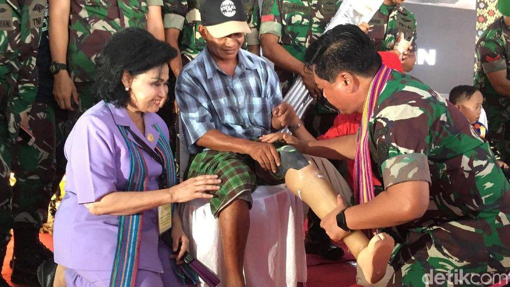 Bakti Sosial di Lombok, Panglima Berikan Kaki Palsu ke Warga