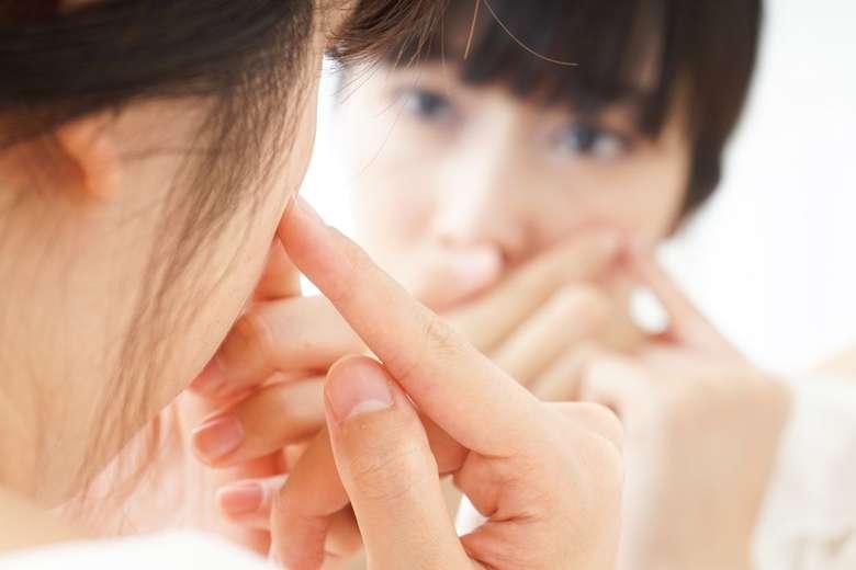 Jerawat! Perubahan komposisi hormonal banyak berperan pada munculnya jerawat. Bukan cuma saat jatuh cinta, tapi juga ketika stres melanda. iStock