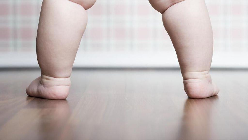 70 Juta Anak di Dunia Diprediksi Alami Obesitas pada 2025