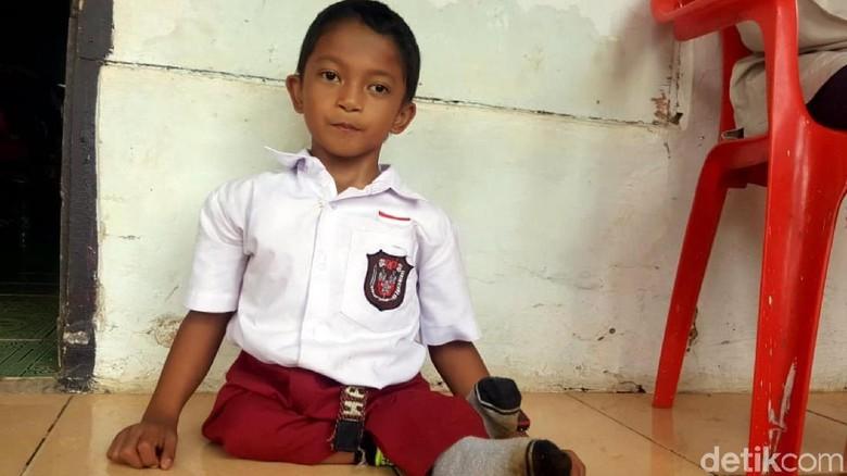 Merangkak ke Sekolah, Adul Bercita-cita Jadi Pemadam Kebakaran