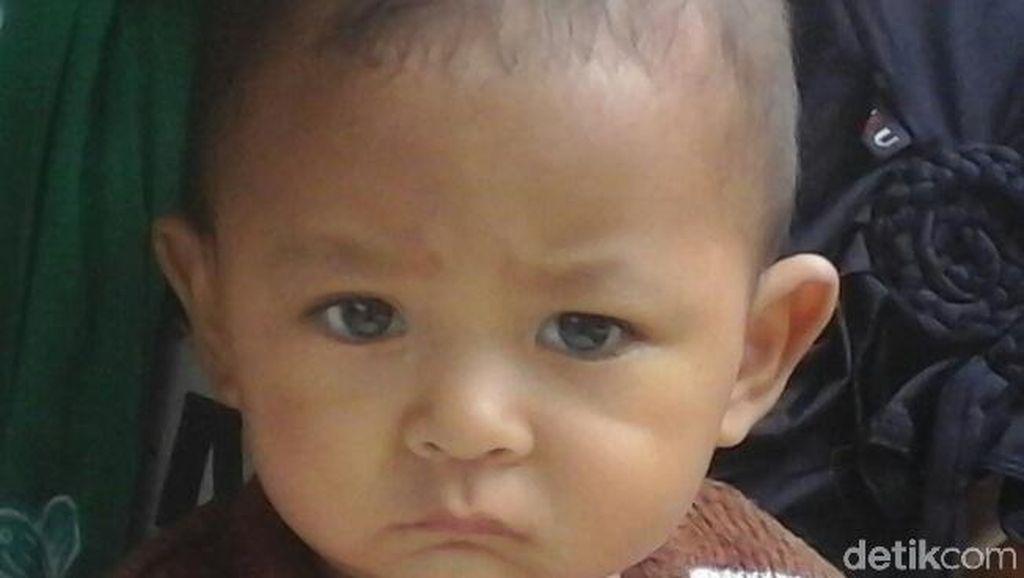 Tolong! Bayi Korban Gempa di Lombok Barat Kena Tumor Mata Ganas