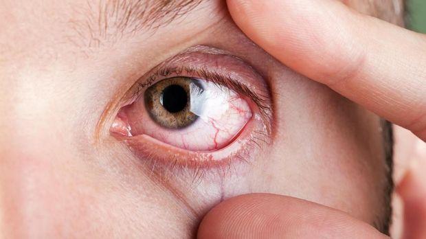 Penyebab dan Cara Menghentikan Mata Berair [EBG]