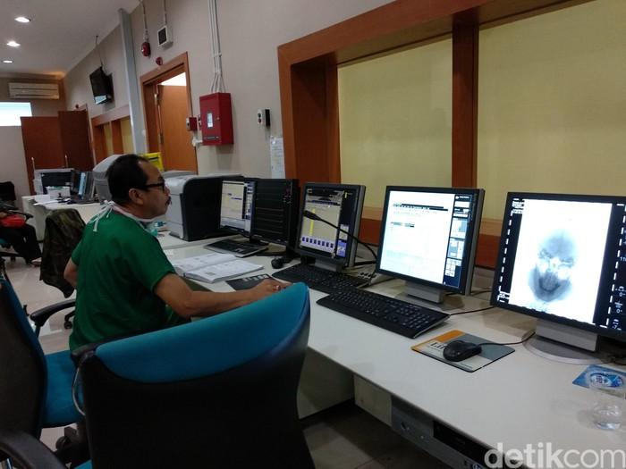 Ini adalah alat terapi cuci otak, yaitu alat Digital Substraction Angiography (DSA) yang ada di Rumah Sakit Kepresidenan Rumah Sakit Pusat Angkatan Darat (RSPAD) Gatot Soebroto, Jakarta Pusat. (Widiya/detikHealth)