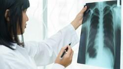 Mengenal Pneumonia: Gejala, Penyebab, dan Pencegahannya