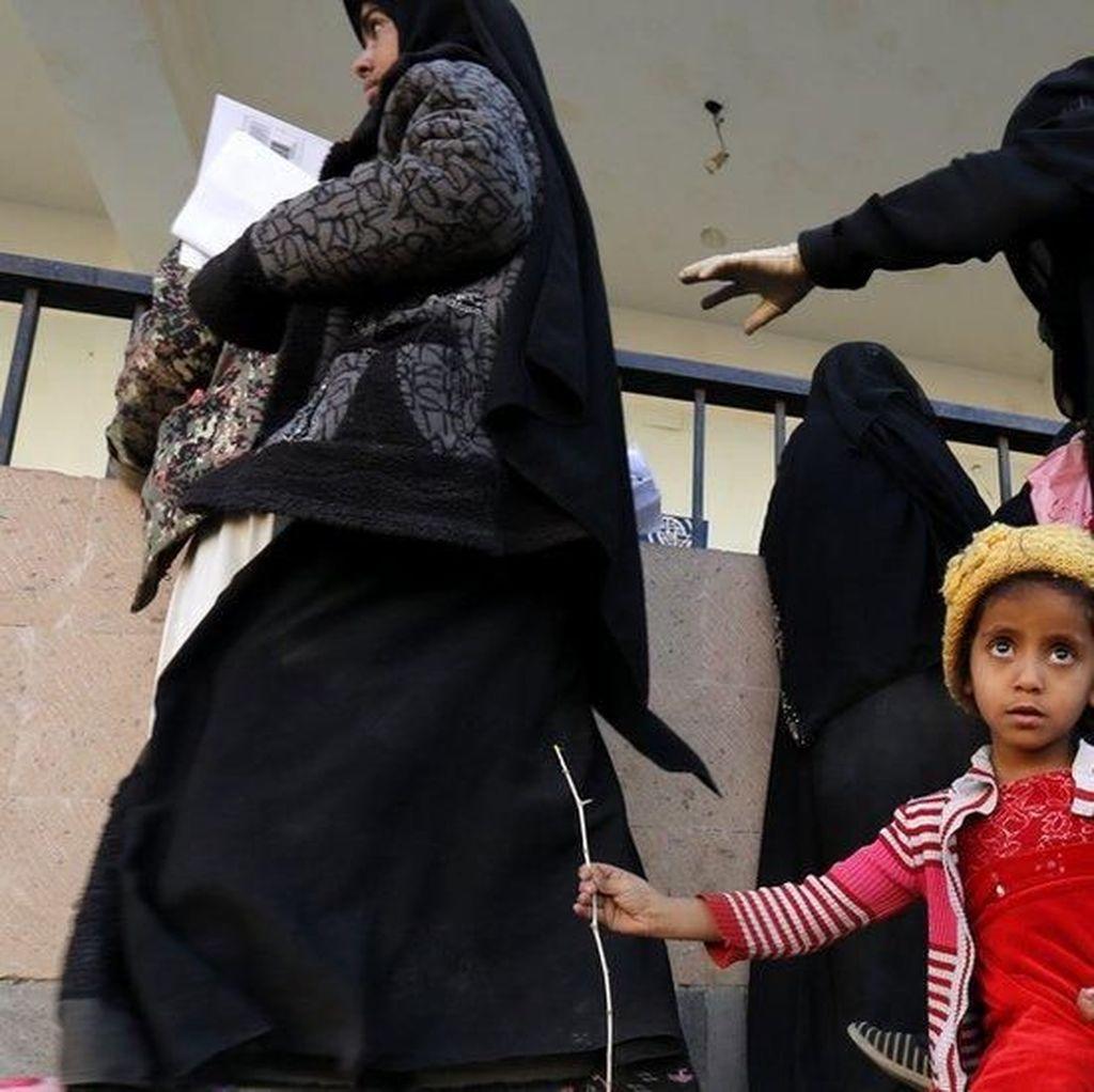 Perang di Yaman Picu Bencana Kemanusiaan Terburuk dalam 1 Abad