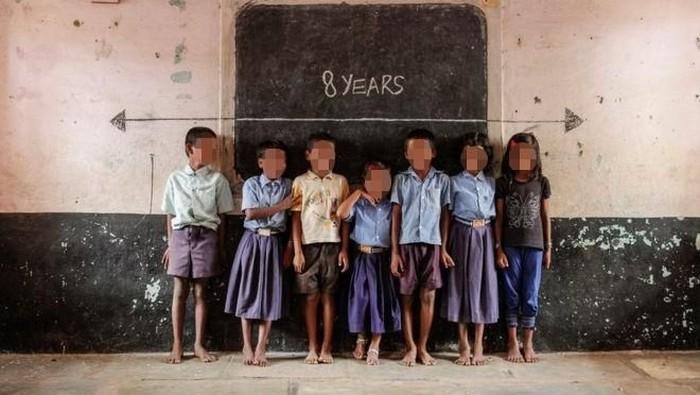 Ilustrasi stunting pada anak. (Foto: internet)