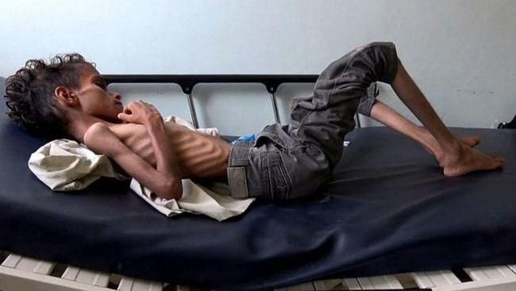 Kondisi Pilu Bocah Yaman Umur 10 Tahun yang Beratnya Hanya 8 Kg