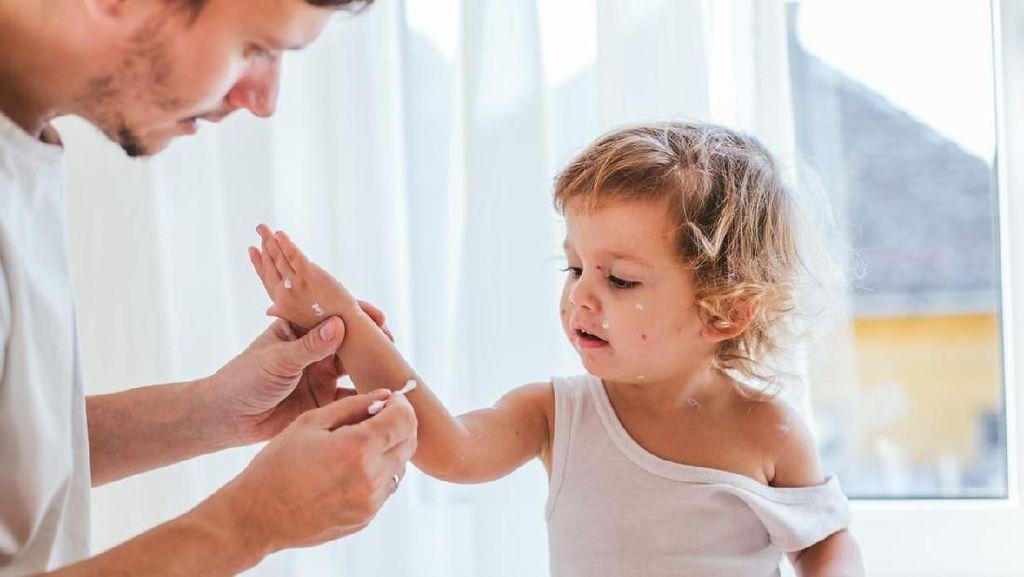 Cara Mengatasi Gigitan Nyamuk pada Kulit Anak