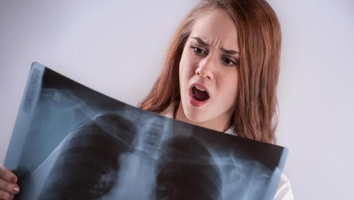 Paru-paru rusak saat batuk biasanya terjadi karena penyakit lain yang ada sebelumnya (Foto: iStock)