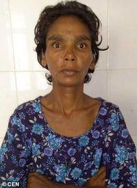 Hobi Makan Benda Tajam, Perut Wanita Ini Dipenuhi Peniti hingga Ritsleting