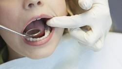 Idap Kondisi Langka, Wanita Ini Punya Rambut Lentik Tumbuh di Giginya