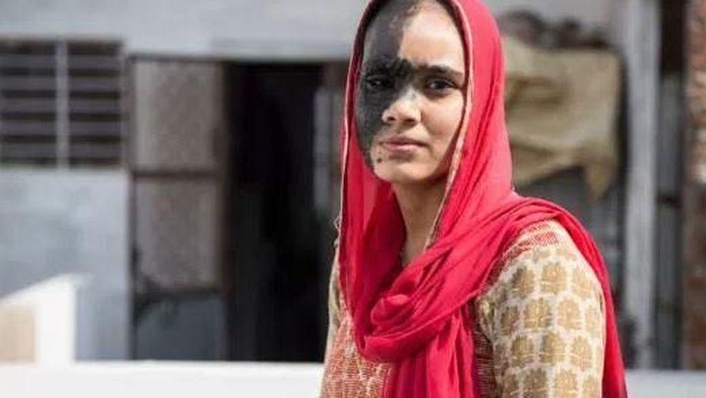 Kisah Sedih Wanita yang Sulit Menikah karena Punya Tanda Lahir di Wajah