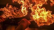 Jari Putus hingga Tersiram Minyak Panas, Ini Kecelakaan Dapur yang Seram