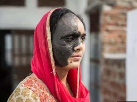 Naseem Banu sulit menikah dan dapat pekerjaan karena kondisi wajahnya