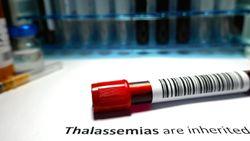 Cek Darah Sebelum Nikah! Wajib Tahu Status karena Thalassemia Bisa Dicegah