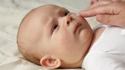 1 Dari 5 Ribu Bayi Terlahir dengan Usus di Luar Perut, Ini Penyebabnya