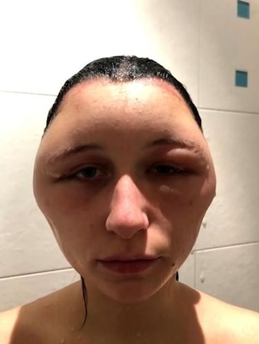 Kepala Wanita Ini Bengkak Seperti Balon Gara-Gara Warnai Rambut
