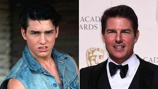 Tom Cruise dan Deretan Selebriti yang Kabarnya Operasi Plastik