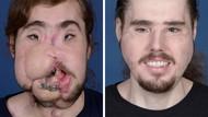 Wajahnya Hancur, Pria Ini Bisa Tersenyum Lagi Berkat Transplantasi