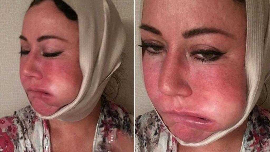 Ngeri, Wajah Wanita Ini Bengkak Sebelah Setelah Operasi Plastik