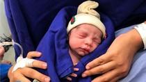 Pertama Kali, Bayi Lahir dari Transplantasi Kandungan Donor yang Meninggal
