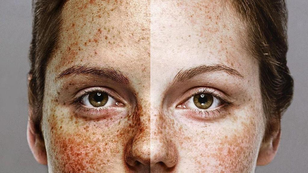 Viral, Foto Wanita yang Jadi Bukti Pentingnya Pakai Pelembap dan Sunscreen