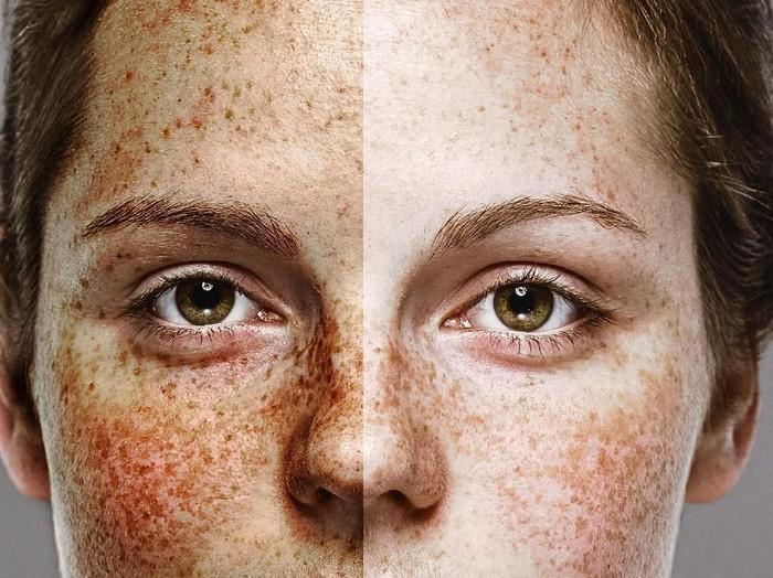 Ilustrasi wajah rusak karena narkoba. Foto: iStock