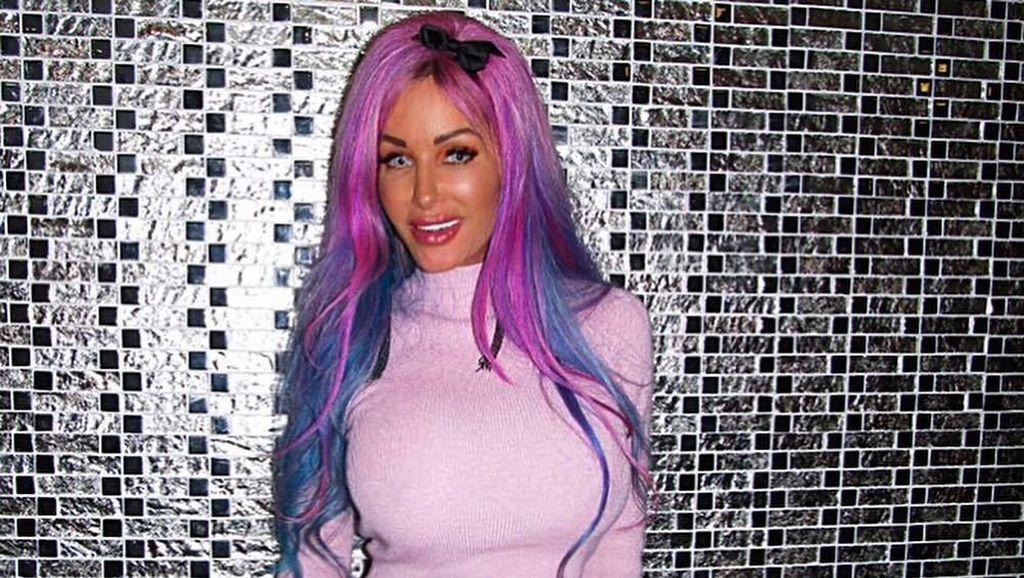 Penampakan Wanita yang Habiskan Rp 6,4 M Demi Jadi Barbie, Sudah Mirip?