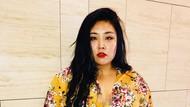 Potret Memesona Model Korea yang Jadi Sensasi, Dihina karena Terlalu Gemuk