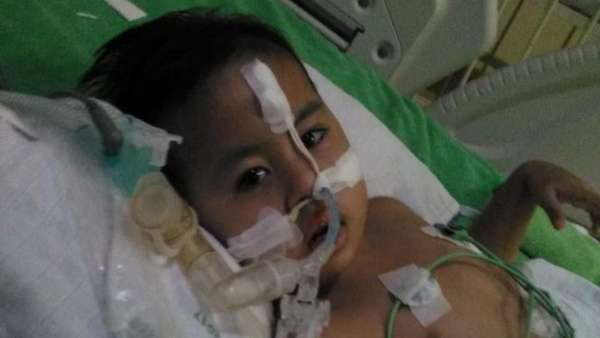 Kisah Dito, Pengidap Penyakit Langka Pompe Pertama di Indonesia