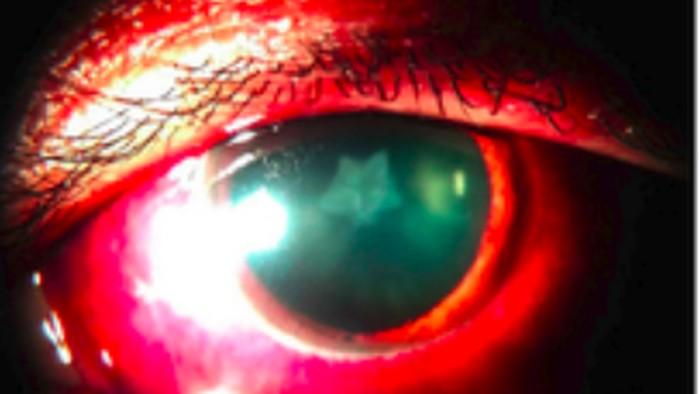 Mata sang pria berbintang setelah wajahnya kena pukulan. (Foto: BMJ Case Reports)