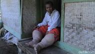 Sakit Kaki Gajah, Warga Sumedang Butuh Pengobatan dan Rutilahu