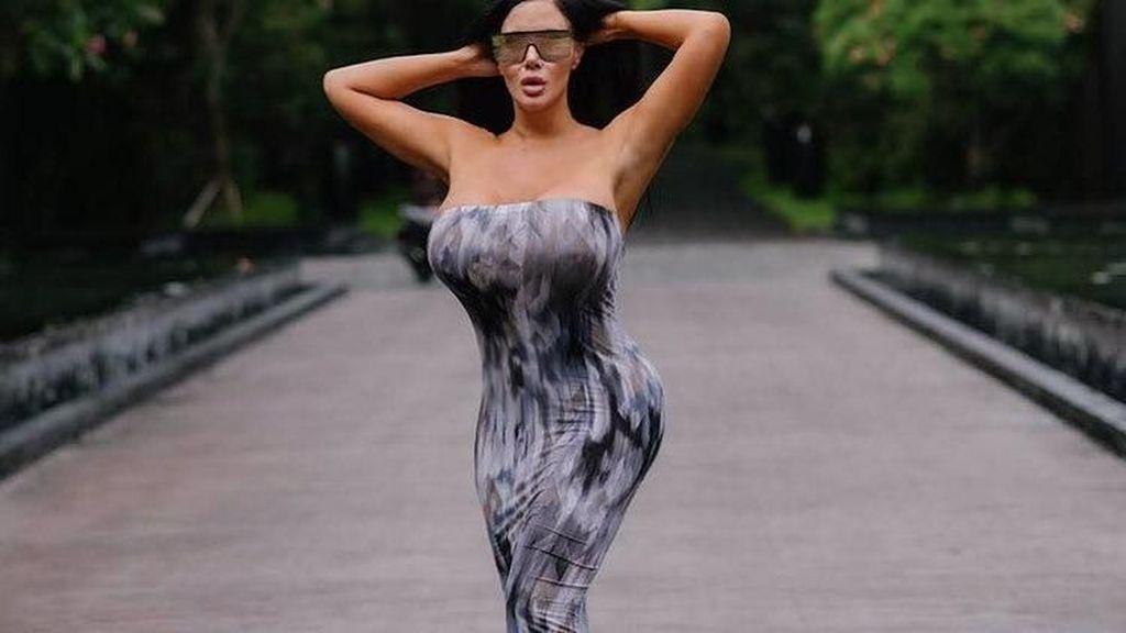 Penampilan Model Playboy yang Habiskan Rp 7,4 Miliar untuk Operasi Plastik